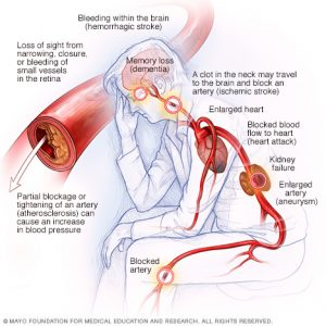 How Long Stop Drinking Lower Blood Pressure