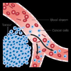 درمان گیاهی سرطان خون